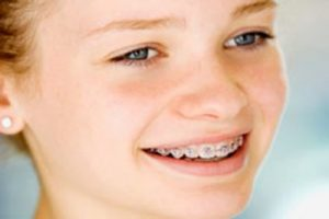 Kids braces in Sugar Land TX